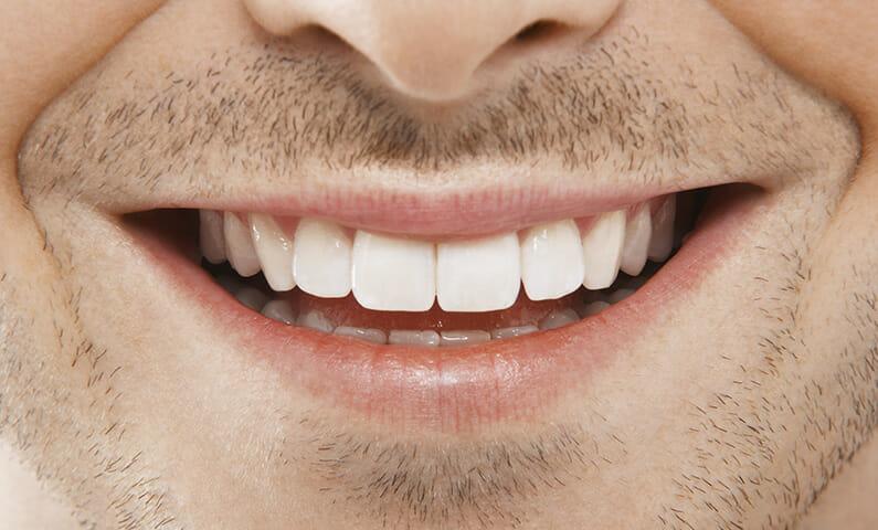 Swedish expressions: Klädd upp till tänderna